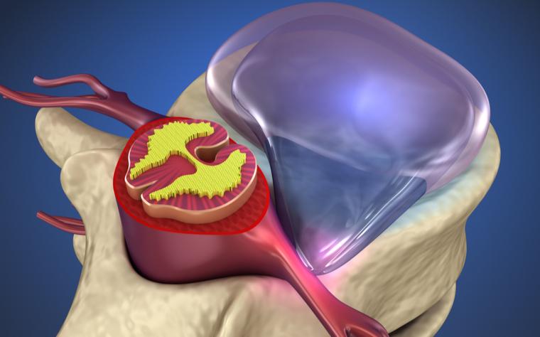 rpg-no-tratamento-da-hernia-discal