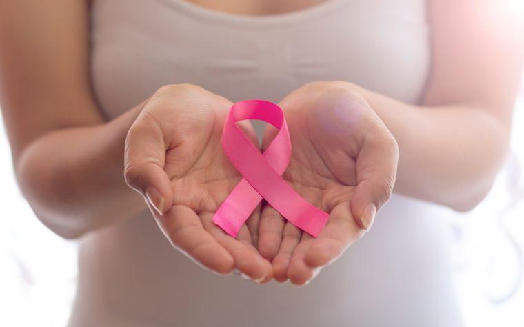 O linfedema por câncer de mama: entenda os efeitos da radioterapia