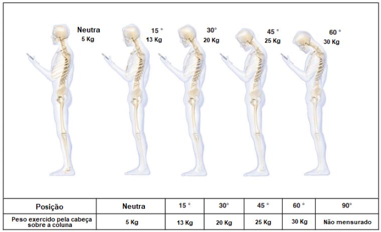 text-neck-syndrome-efeitos