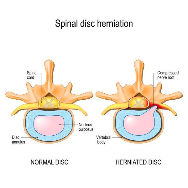 disco-vertebral-hernia-de-disco