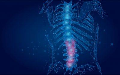 É uma boa ideia utilizar Mobilização Neural na hérnia de disco?