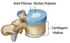 anel fibroso hérnia de disco