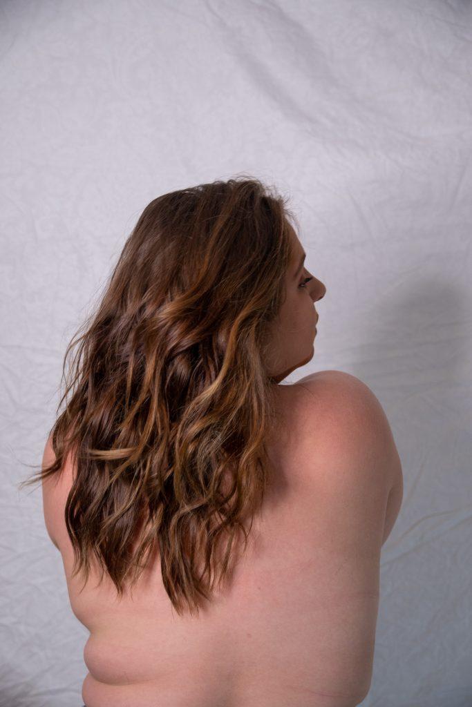 ombro-mulher-cancer-de-mama