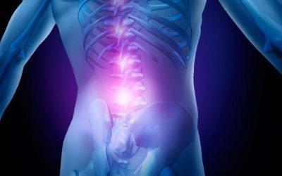 Sintomas e Tratamento da hérnia de disco