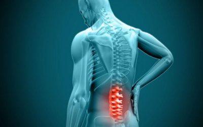 O que causa a hérnia de disco?