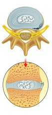 hérnia-de-disco-protusa