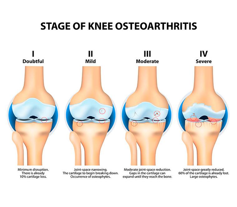 01 - A fisioterapia nos pacientes com Osteoartrose de joelho
