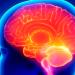 Guia Definitivo do Tratamento Fisioterapêutico para Encefalopatia Crônica Não Progressiva