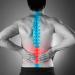 12 Exercícios para Prevenção de Patologias na Coluna Lombar